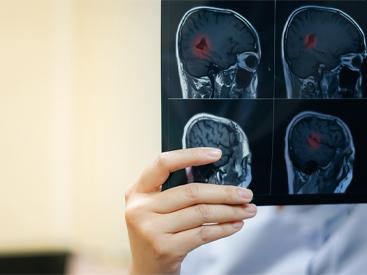 뇌-S.jpg